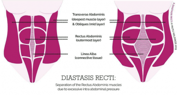 xtra-fit-blog-diastasis.png